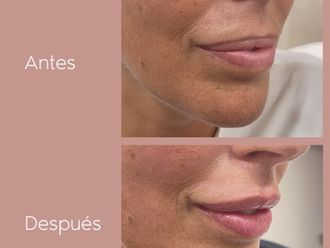 Aumento labios - 800616