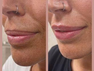 Aumento labios - 800617