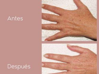 Tratamiento antimanchas - 800618