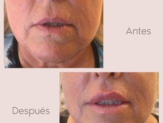 Aumento labios - 800620