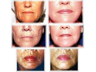Eliminación arrugas - 629624