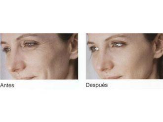 Mesoterapia-629625