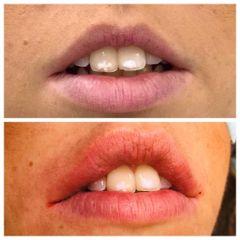 Aumento de labios - Dr. Carlos Miera