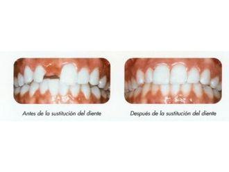 Implantes dentales-789830