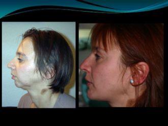 Cirugía maxilofacial - 789831