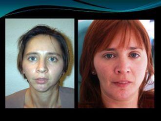 Cirugía maxilofacial-789832