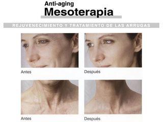 Mesoterapia - Dr. Carlos Miera