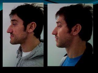 Cirugía Ortognática - Dr. Carlos Miera