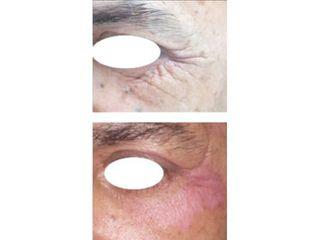Blefaroplastia - Dr. Carlos Miera