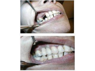 Implantes dentales - Dr. Carlos Miera
