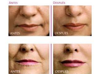 Rellenos faciales - Dr. Carlos Miera