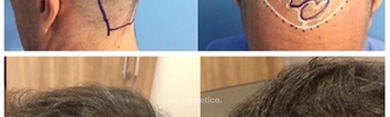 Antes y después: microinjertos capilares