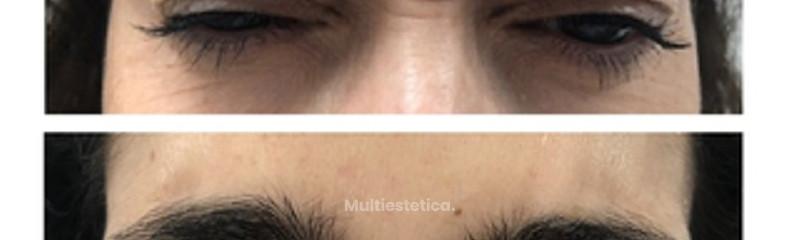 Botox en entrecejo, Antes y Después