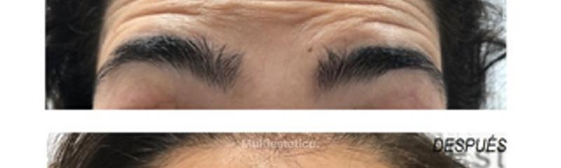 Botox frente: Antes y despues