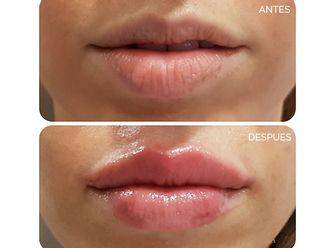 Aumento labios - 625931