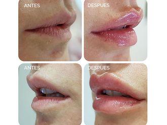 Aumento labios - 625932