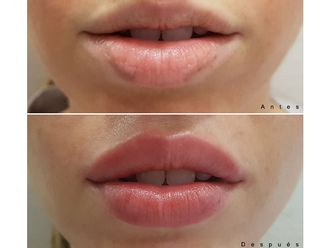 Aumento labios - 627893