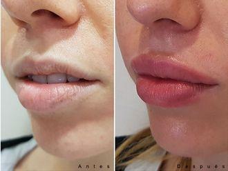 Aumento labios - 627894