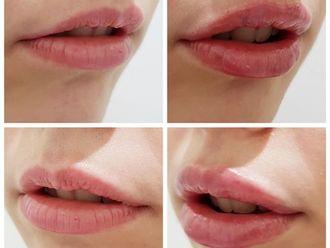 Aumento labios - 628562