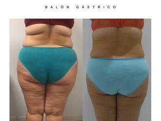 Balón gástrico - 628899