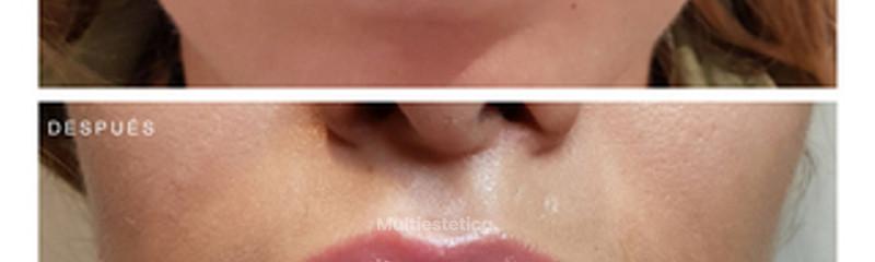 Aumento de labios, antes y despues.