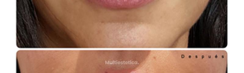 Antes y despues Relleno de Labios