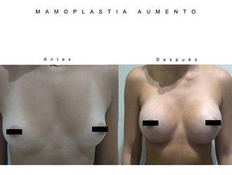 Aumento senos - 633855