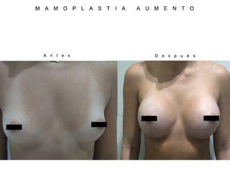 Aumento senos - 633856