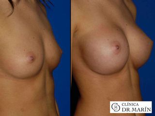 Antes y después de cirugía de aumento de pecho