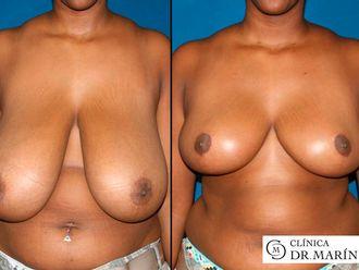 Reducción senos - 560445