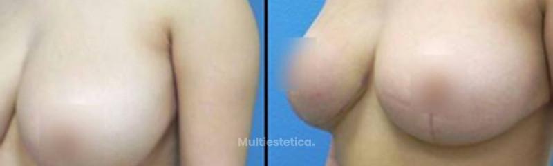 Antes y después de Mastopexia y Reducción de senos