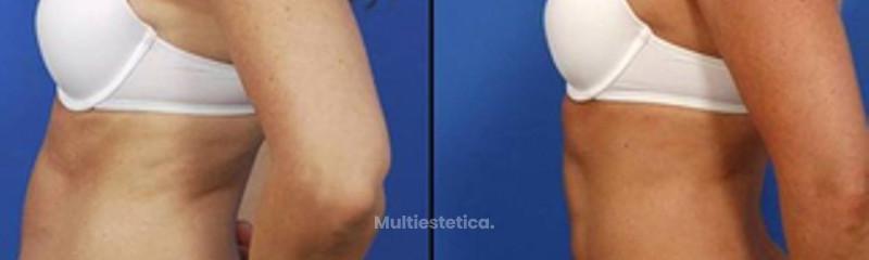 Antes y despues de liposucción en abdomen y flancos.