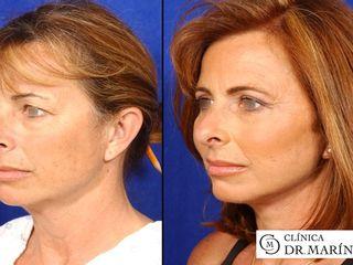 Antes y despues de blefaroplastia completa