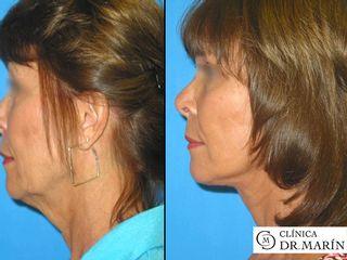 Antes y despues de lifting en la zona de la cara y en el cuello