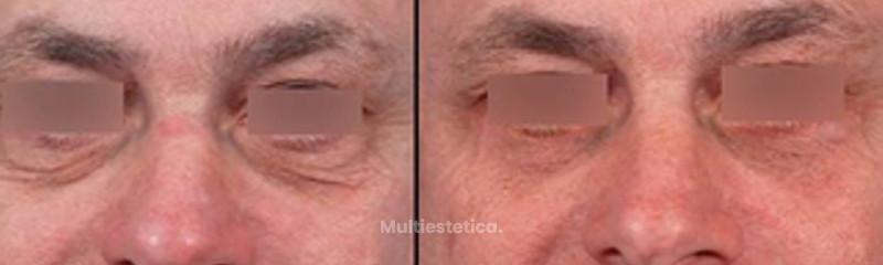 Antes y despues de Blefaroplastia Inferior