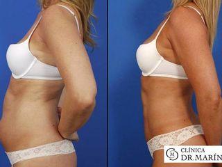 Antes y despues de  liposucción en abdomen y cartucheras.