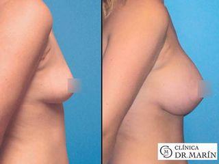 Antes y despues de aumento de pecho con implantes redondos
