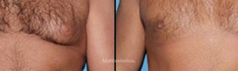 Antes y despues de ginecomastia