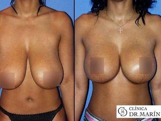 Reducción senos - 595815