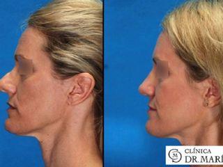 Antes y despues de rinoplastia completa