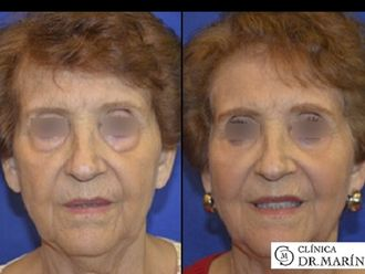 Cirugía estética-595826