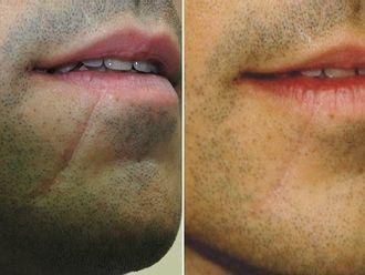 Corrección cicatrices-418905