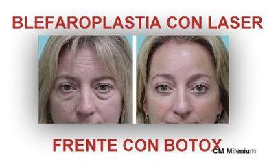 Blefarolaser, toxina botulínica en frente