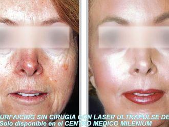 Rejuvenecimiento facial-367300