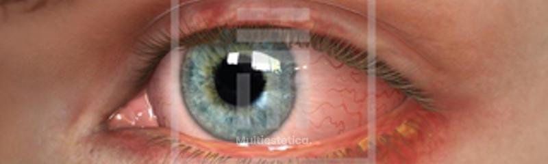 Cirugía láser refractiva