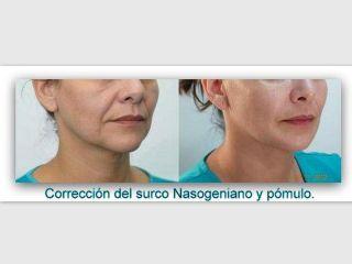 Antes y después Surco nasogeniano y pómulo