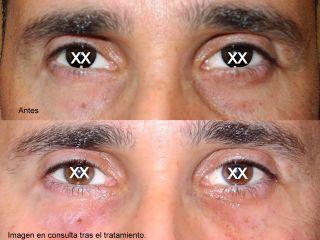 Antes y después Reducción de ojeras