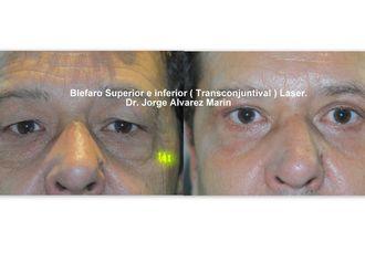 Cirugía estética-428114