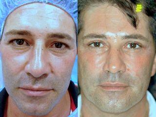 Antes y después Blefaroplastia superior con láser intervención junio 2015