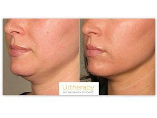 Antes y después Ultherapy 2